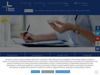 Euro-Klinika leczenie hemoroidów